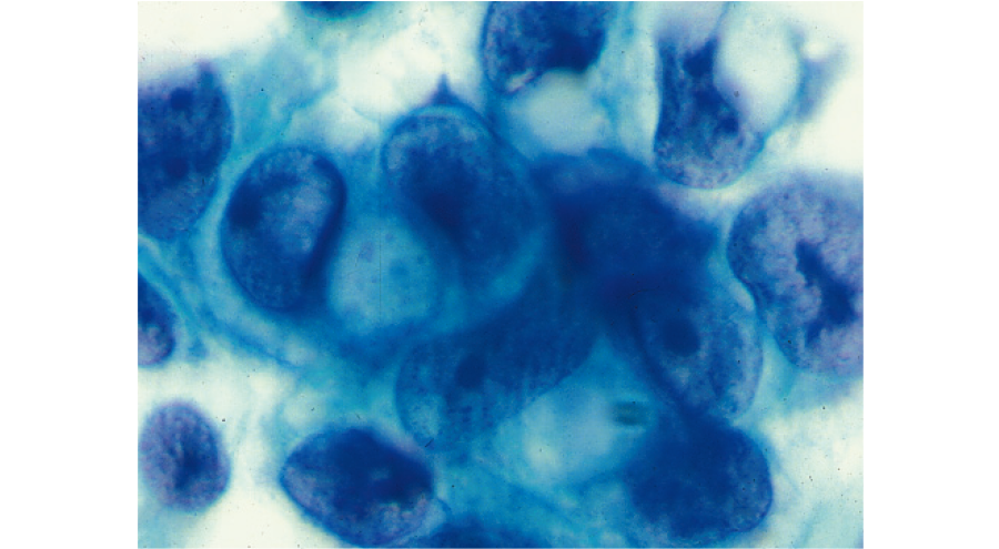 悪性細胞:腹水中の腺癌細胞
