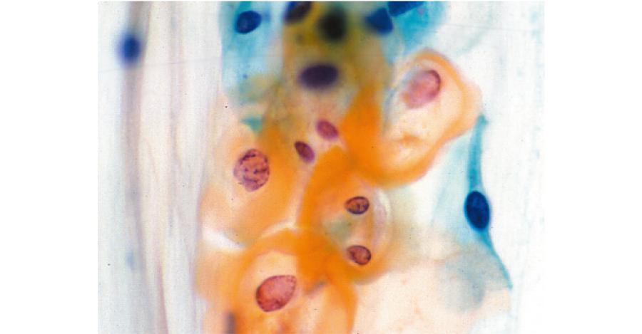 軽度異形成の細胞(→):子宮頸部細胞診