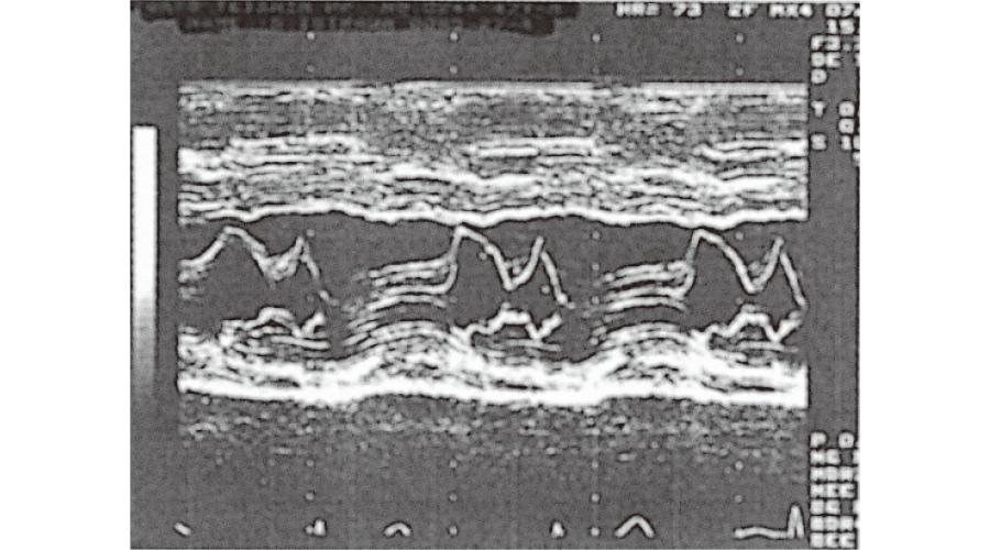 M モード(心臓の壁運動と弁の評価)