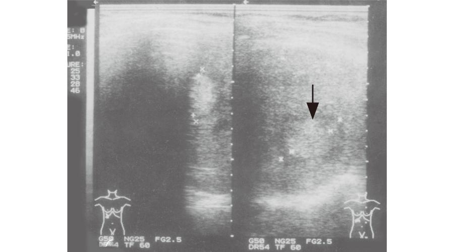 腫瘍(肝細胞癌)