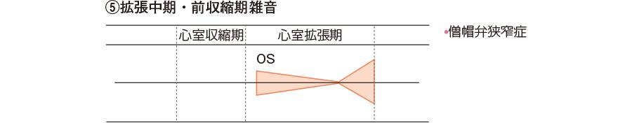 ⑤拡張中期・前収縮期雑音