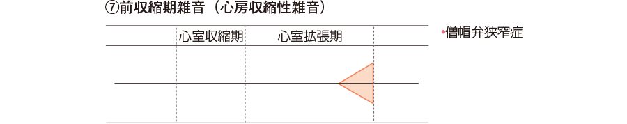 ⑦前収縮期雑音(心房収縮性雑音)