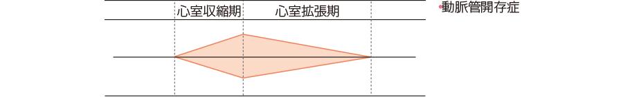 ⑧逆流性拡張期雑音