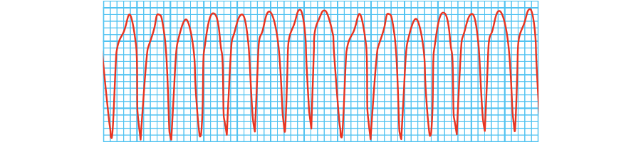 心室頻拍(VT)