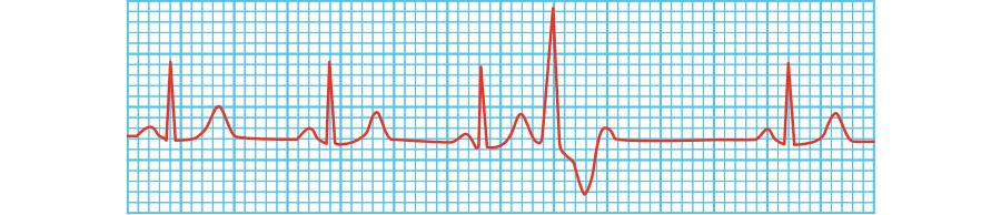 心室性期外収縮(VPC)