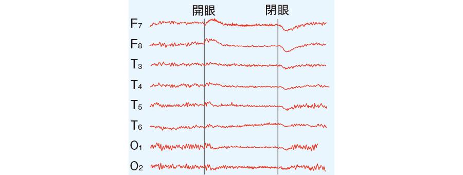 正常脳波と開眼によるαブロッキング