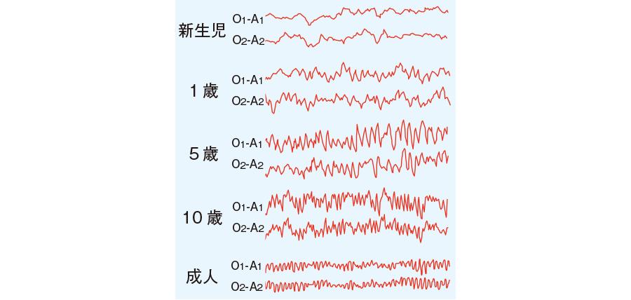 小児の脳波