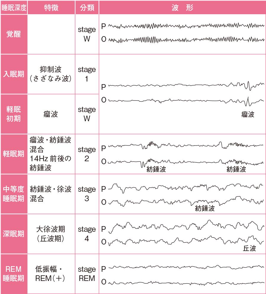 睡眠深度の分類