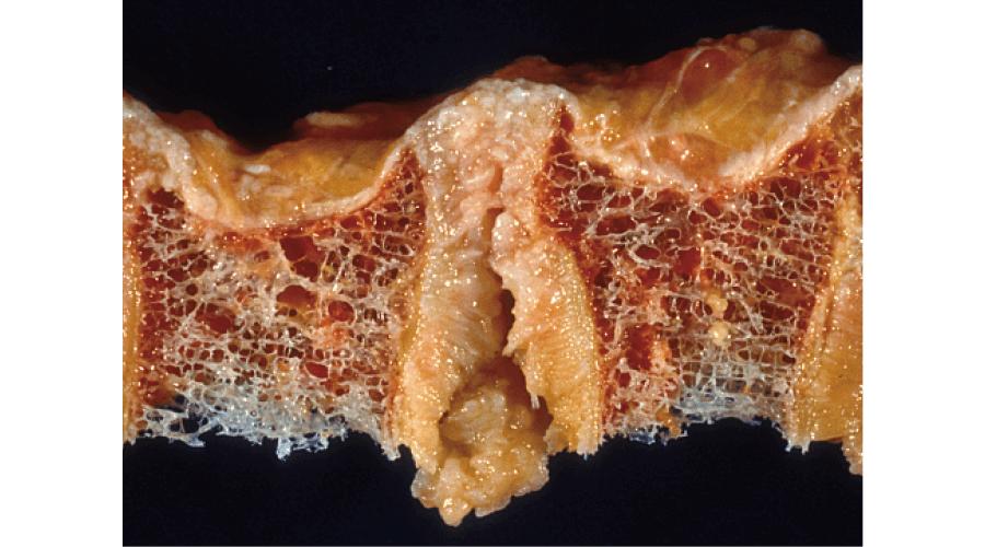 骨粗鬆症:脊髄の肉眼像(骨梁の著明な 萎縮)