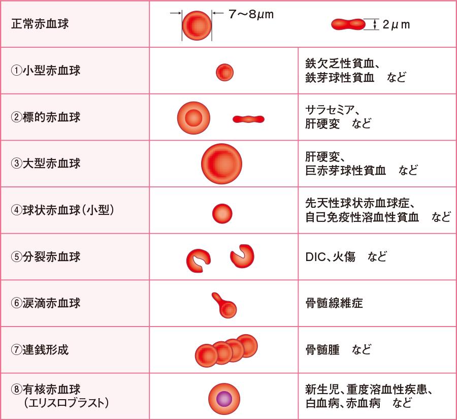 赤血球の形態異常