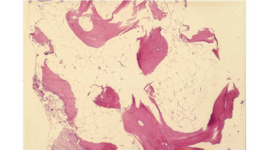 再生不良性貧血(高度の低形成骨髄)