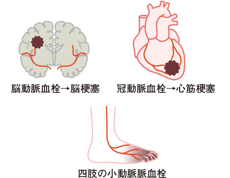 血小板数70 万/μL 以上で血栓症の危険大