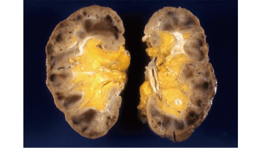 播種性血管内凝固症候群(DIC)