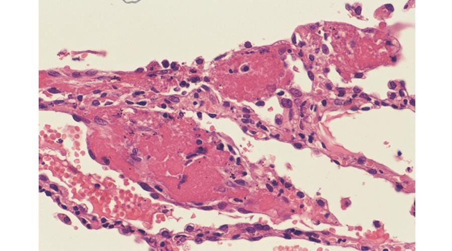 肺毛細血管内のフィブリン血栓