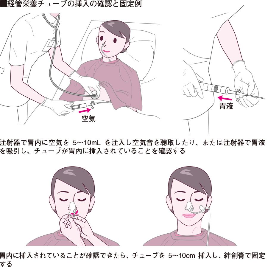 チューブの挿入の確認と固定例