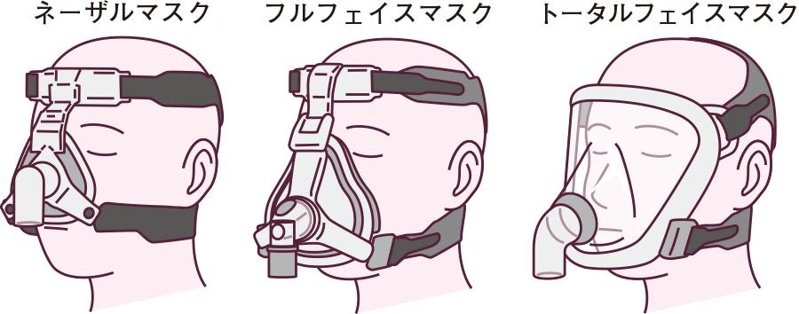 非侵襲的陽圧換気(NPPV)で使用されるマスク