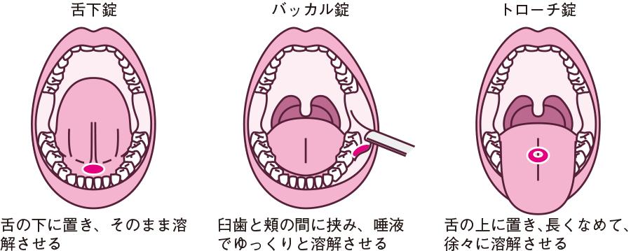 口腔内与薬の方法