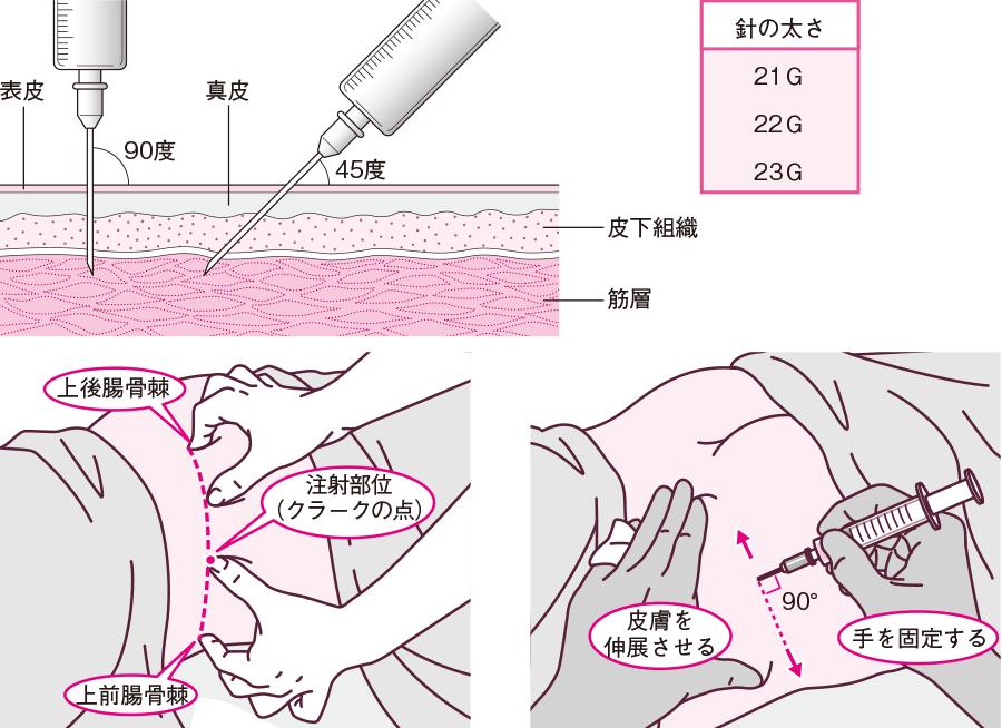 部位 筋肉 注射