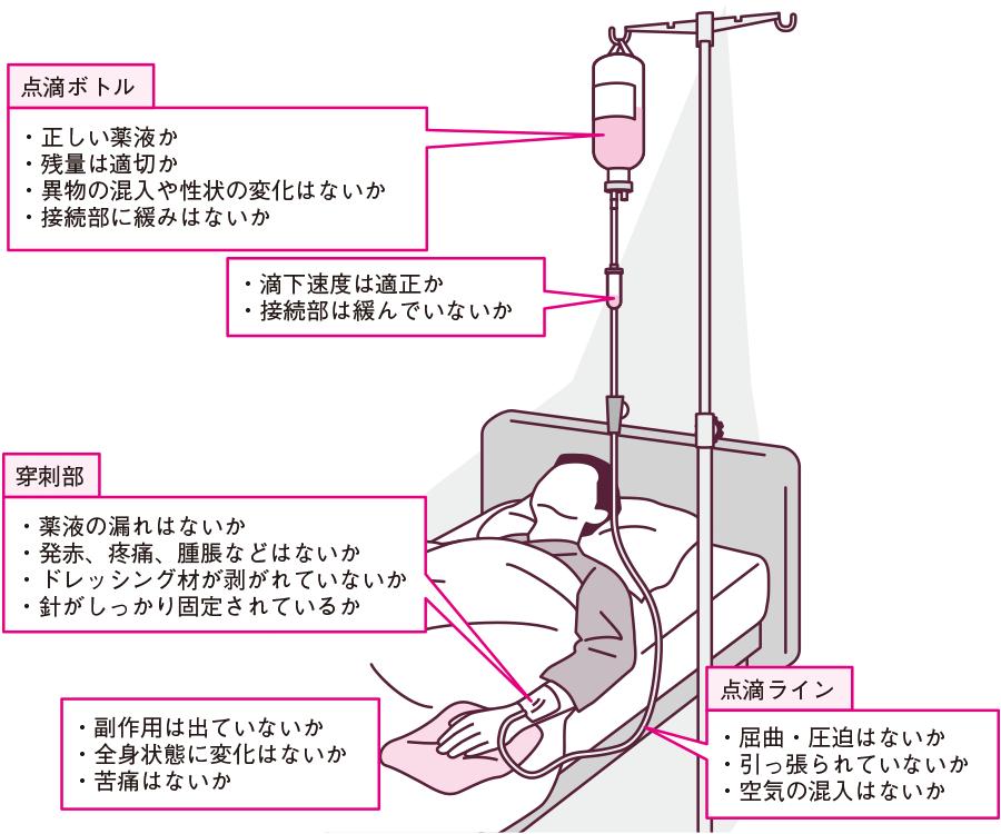 点滴静脈内注射を行っている患者の観察ポイント