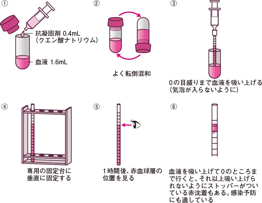 赤沈の測定法(ウェスターグレン法)