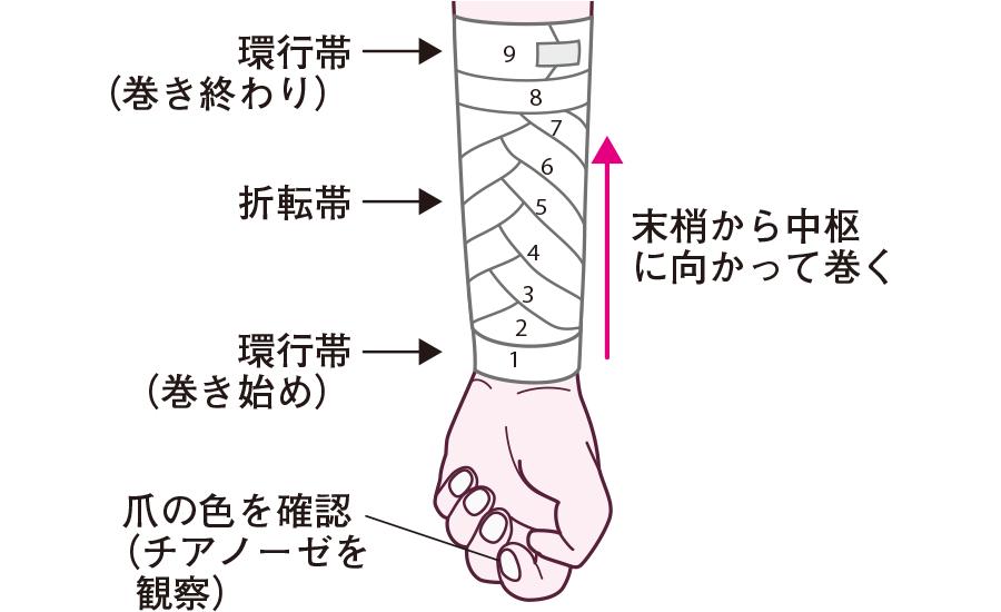 包帯の巻き方の原則