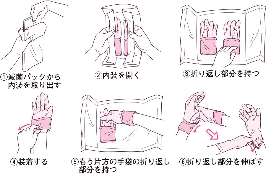 滅菌手袋の装着