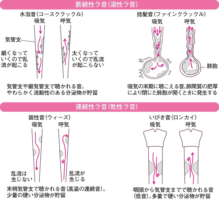 副雑音の種類