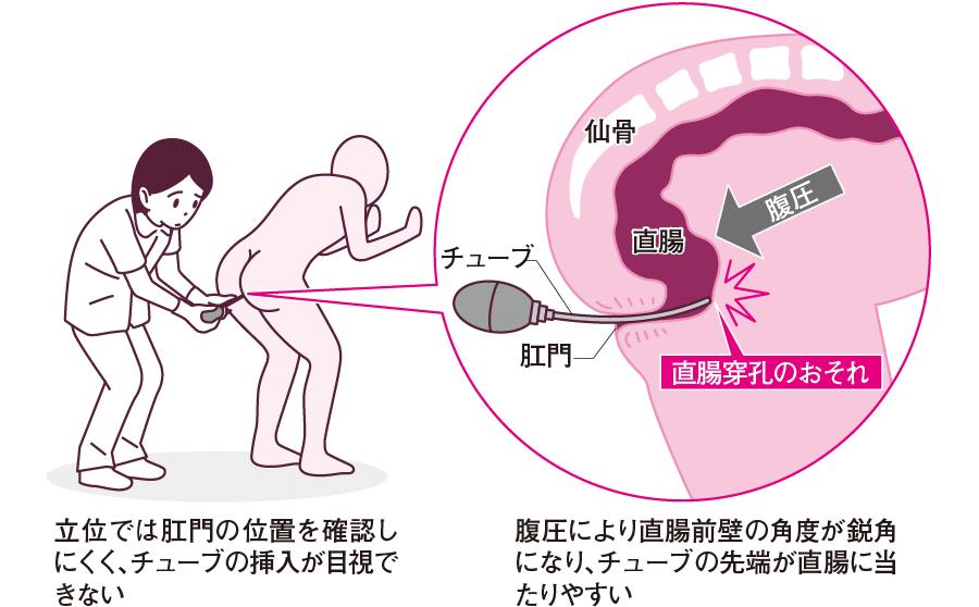 立位での浣腸と直腸の解剖との関係
