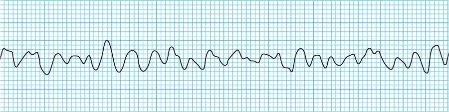 心室細動の心電図