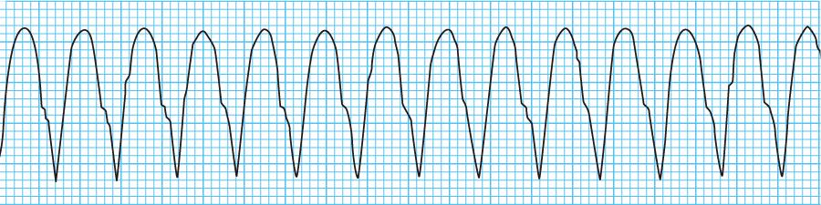 無脈性心室頻拍の心電図