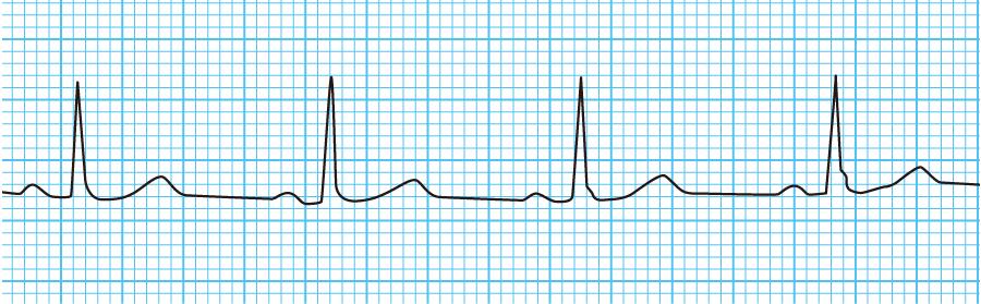 無脈性電気活動の心電図