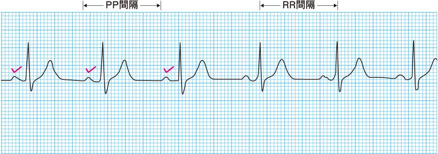 正常心電図( P波をチェック)
