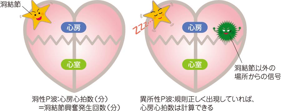 洞性P波と異所性P波