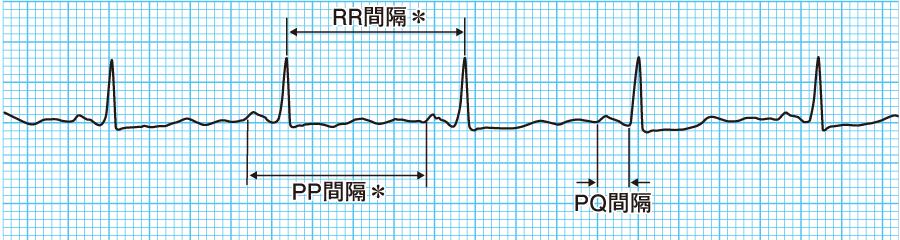 RR間隔とPQ間隔
