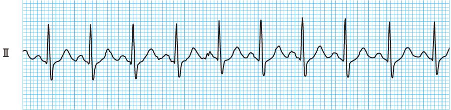 洞性頻脈の心電図