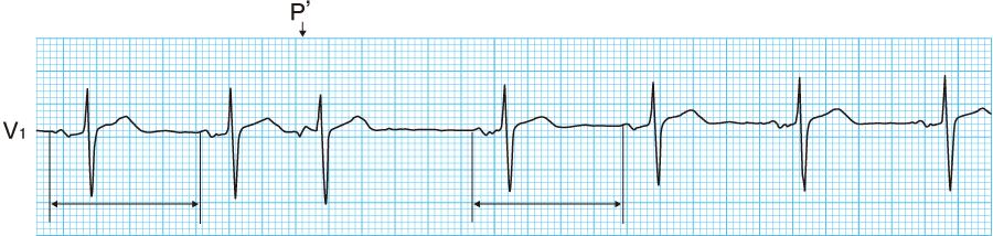 上室性期外収縮の心電図①