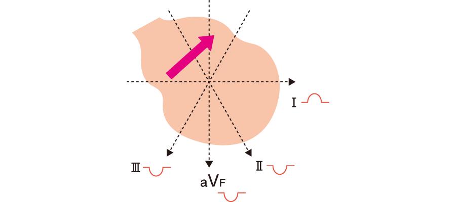 冠静洞調律でのP波の向き