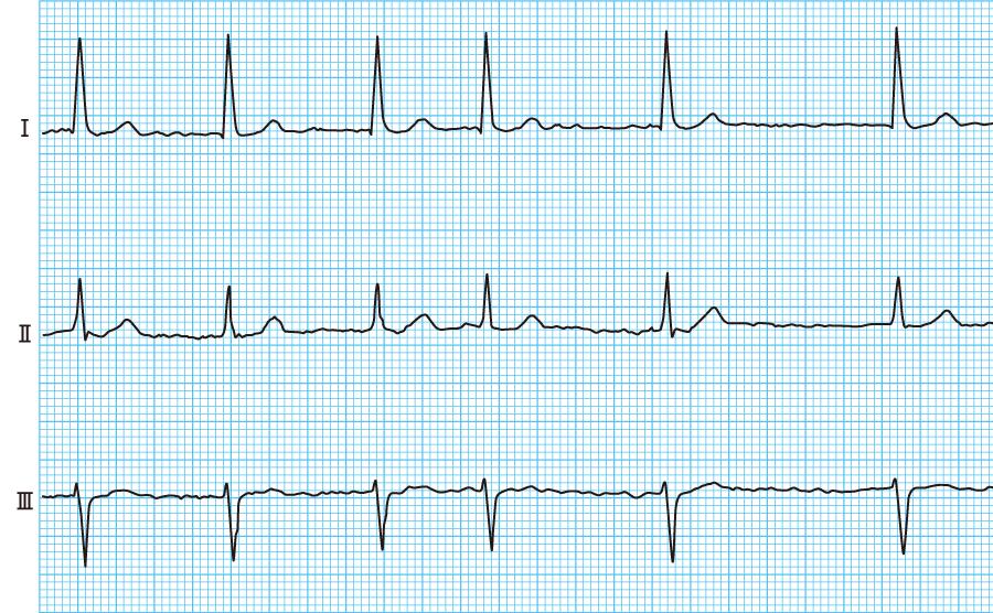 心房細動(Af)の心電図