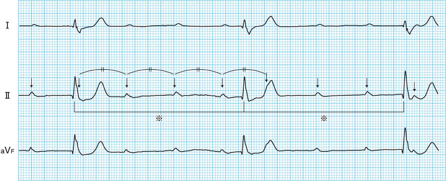 3度房室ブロック(完全房室ブロック)の心電図