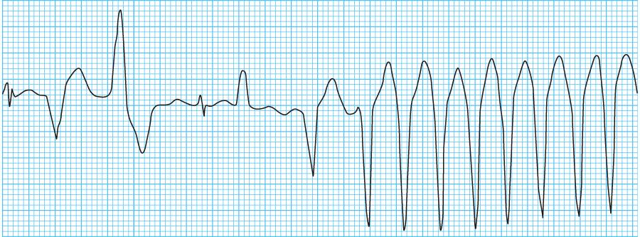 心室頻拍の心電図
