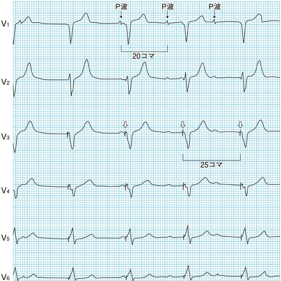 VVIモードの心電図①