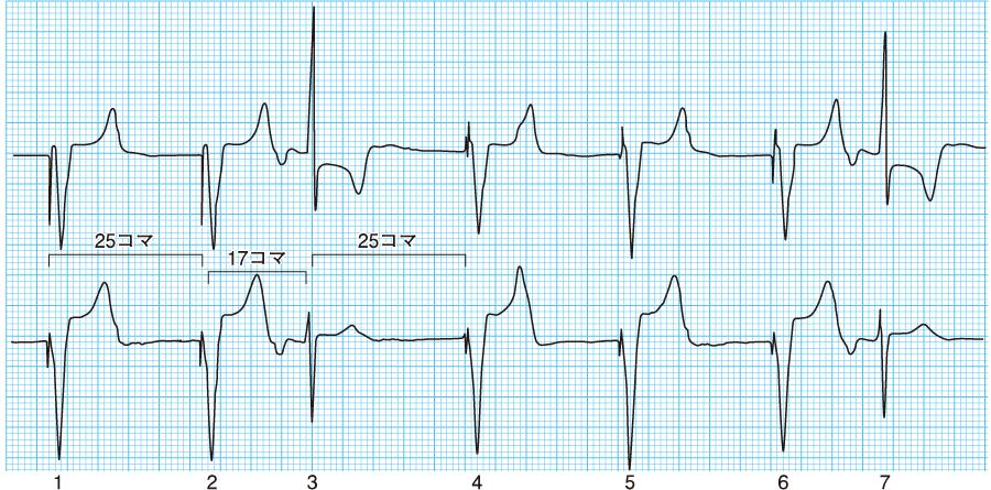 VVIモードの心電図②