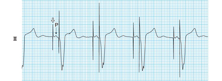 DDDモードの心電図