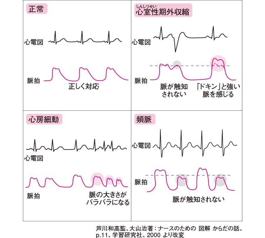 心電図と脈拍の関係