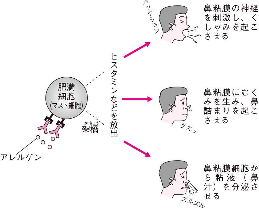 アレルギー性鼻炎の発生機序