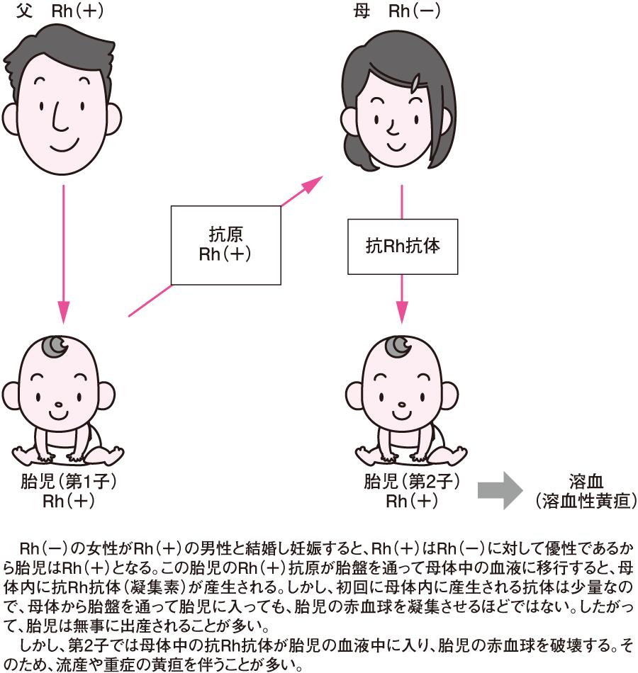 Rh式血液型不適合における抗体の産生
