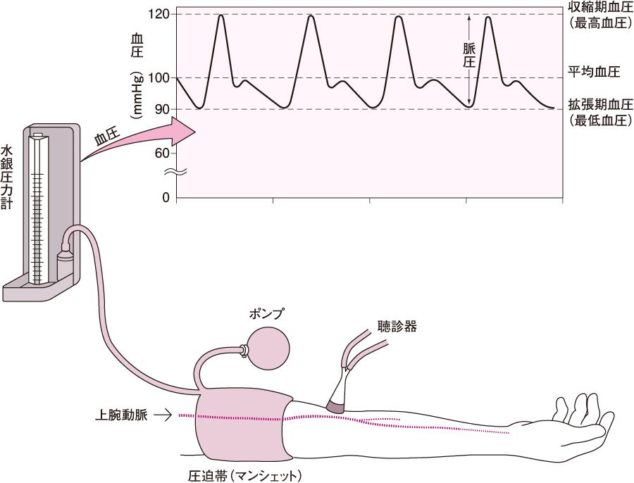 血圧測定法(聴診法)