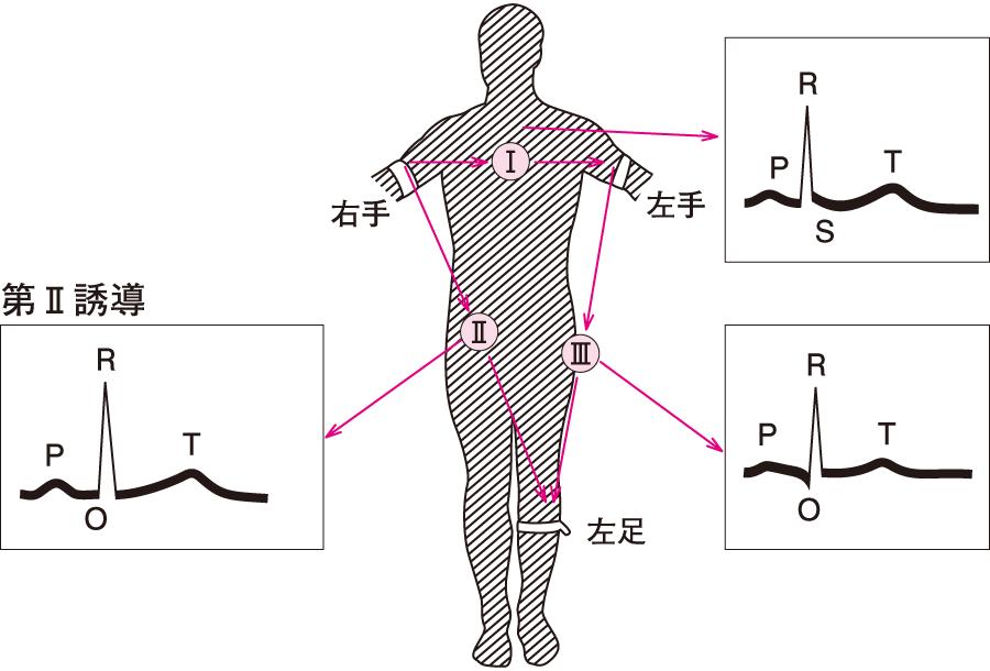 心電図(肢誘導)の記録法