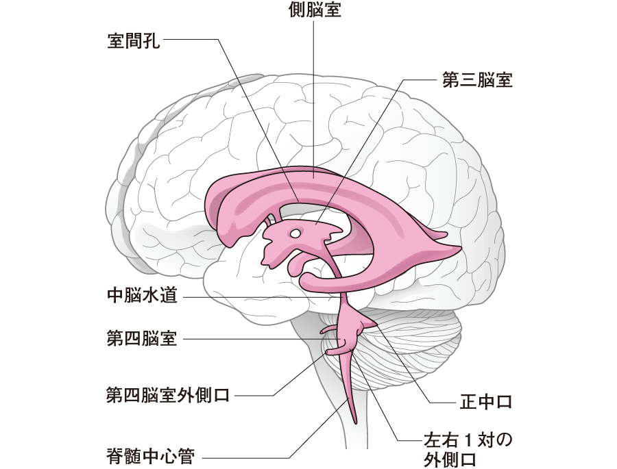 脳室側面と脳室拡大図