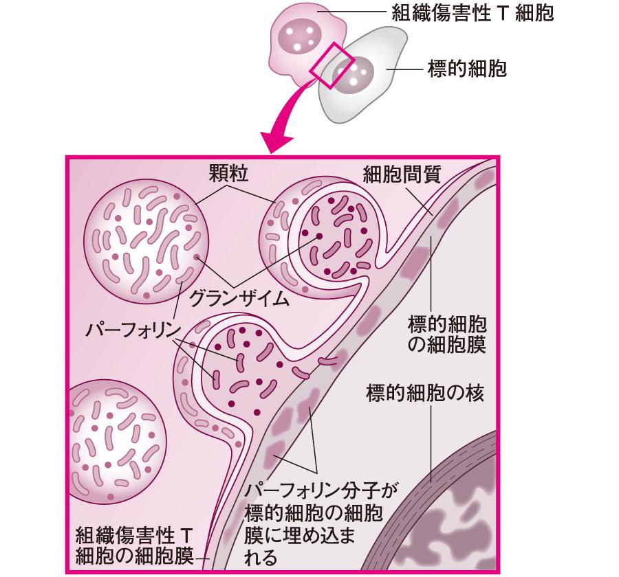 キラーT細胞による標的細胞の破壊